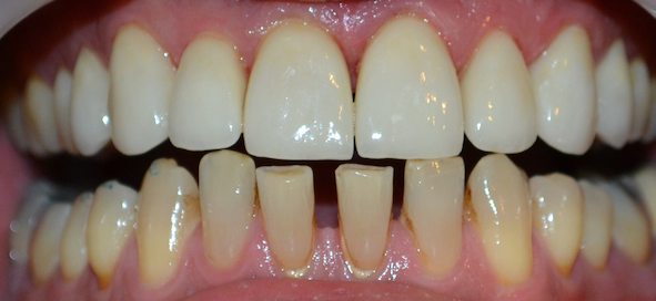 8 porcelain veneers after